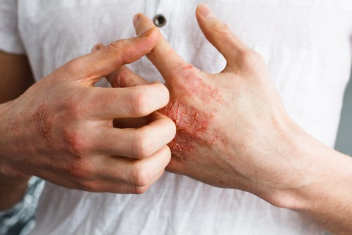 Woman scratching hands because of eczema